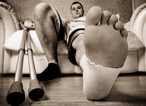 How to treat a Sprained Ankle - Sprains First Aid