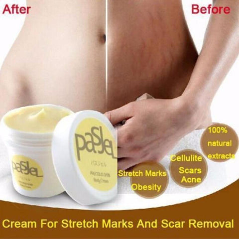 Stretchmarks Remover & Anti-Aging Cream