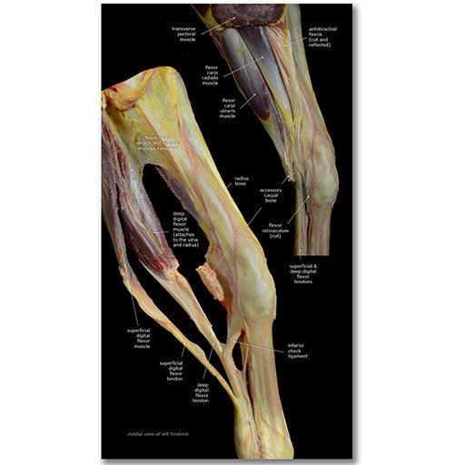 Tendons and Ligaments
