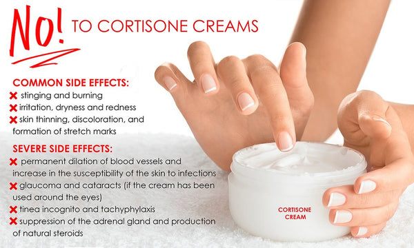 NO! to Cortisone Creams
