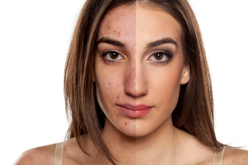 How to remove acne scars in two weeks