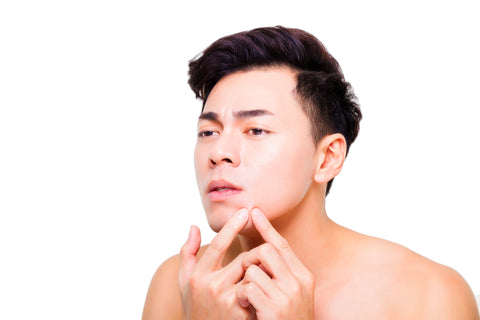 What is Acne Vulgaris? How Does Acne Form? - BioClarity – bioClarity
