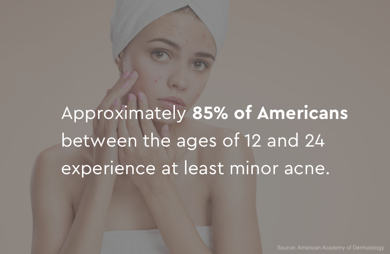 85% of Americans experience at least minor acne