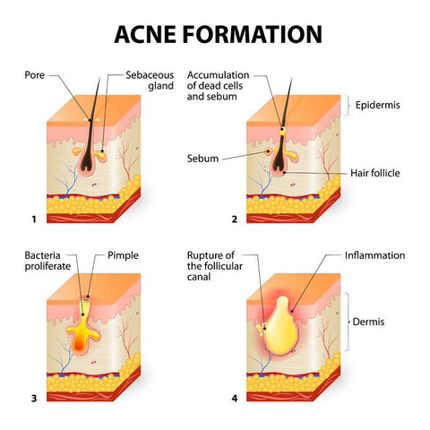 Acne vs Pimples: Difference Between Pimples & Acne – bioClarity