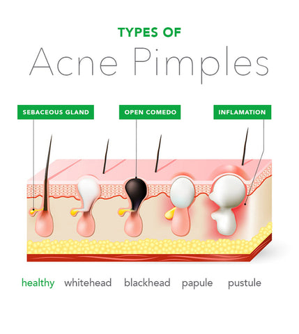 diagnosing your acne