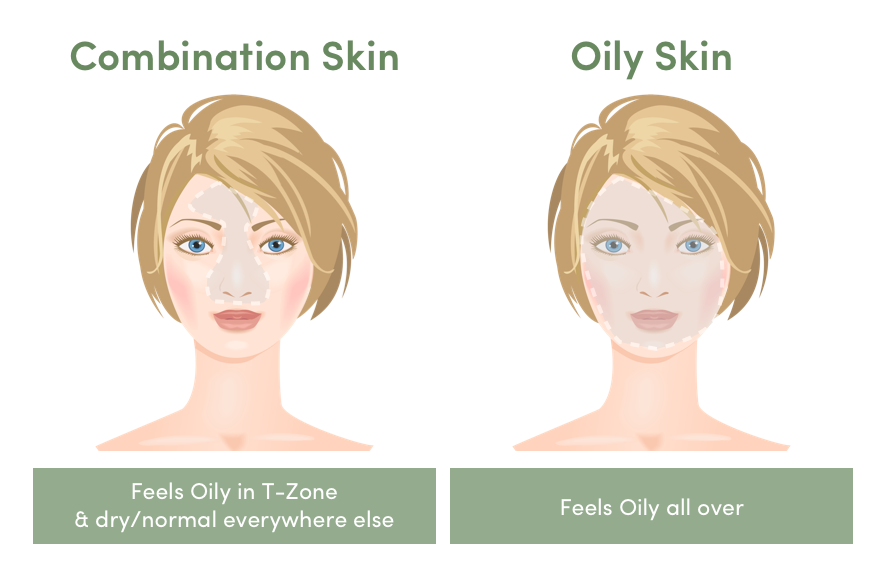 Combination Skin vs. Oily Skin