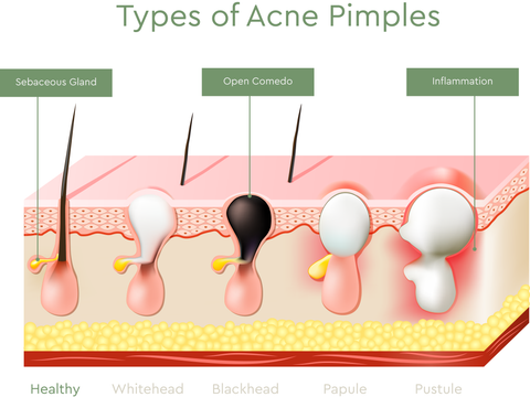 what type of acne do you have? types of acne explained – bioclarity, Cephalic Vein