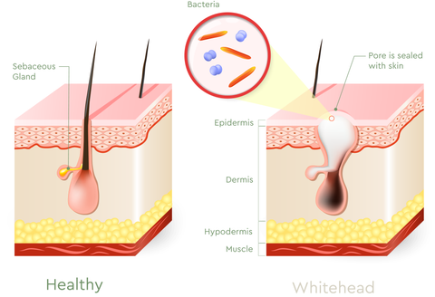 what type of acne do you have? different types of pimples \u2013 bioclarity Ovarian Cyst Diagram self extraction of comedones can cause more harm than good the follicle walls in blackheads and whiteheads can be ruptured quite easily, and this rupture
