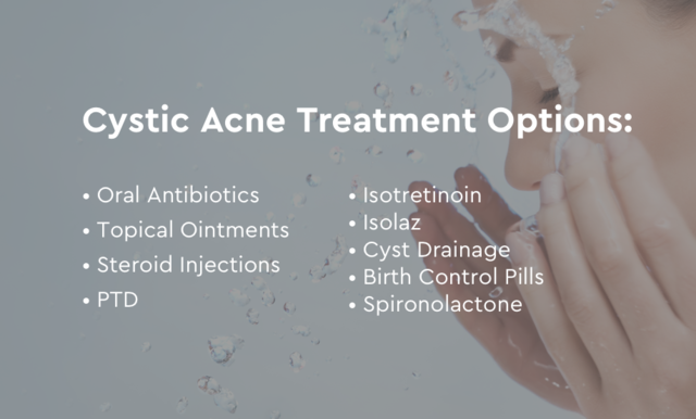 cystic acne treatment options