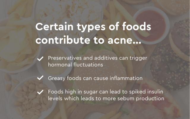 certain foods can cause acne