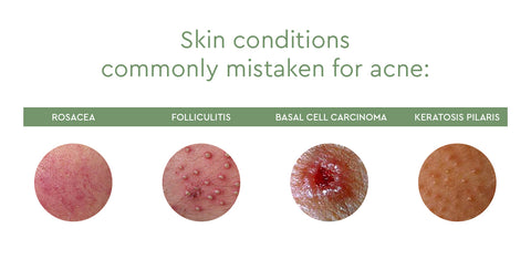 What Is Acne Vulgaris How Does Acne Form Bioclarity