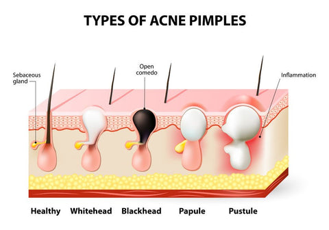 What Causes Chest Acne? 5 Ways to Remove Chest Pimples