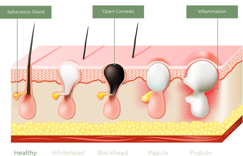 what type of acne do you have? different types of pimples \u2013 bioclarity Ovarian Cyst Diagram acne vulgaris presents different types of acne lesions blackheads, whiteheads, papules, pustules, nodules, and cysts