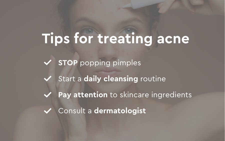 Top tips for treating acne image