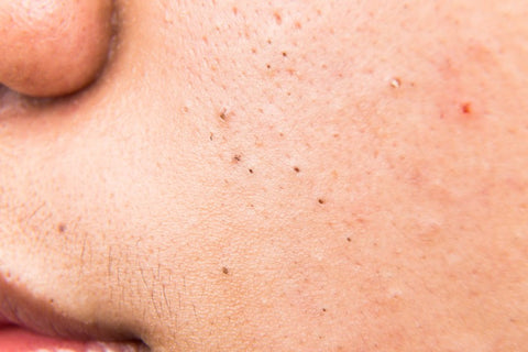 image of face with clogged pores