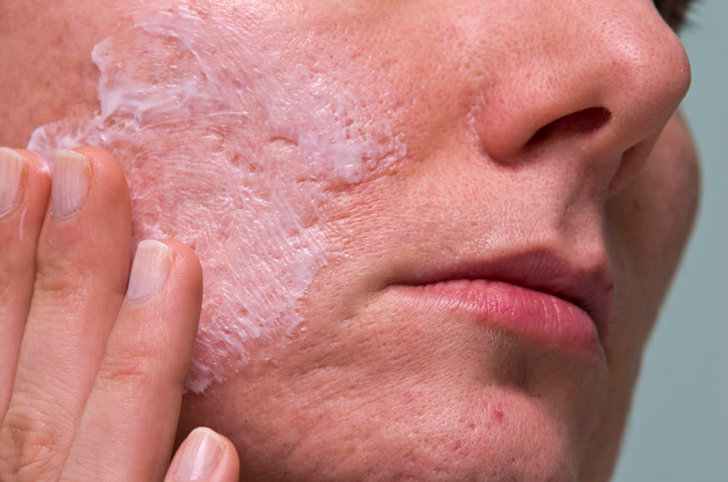 what helps get rid of redness from acne