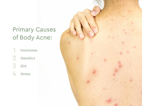 primary causes of body acne