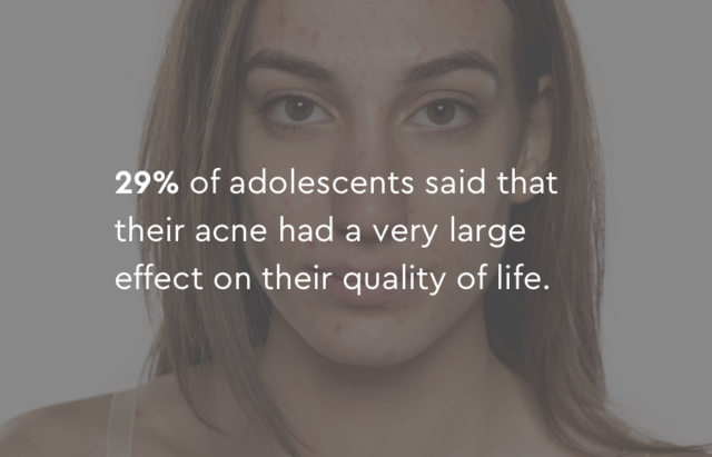 29% of adolescents said their acne had a large effect on their quality of life