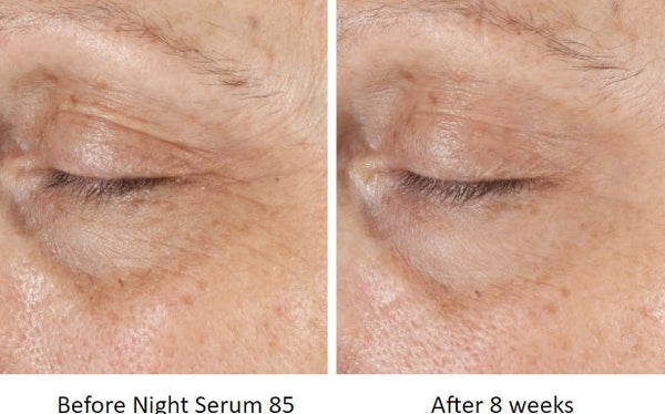 Hate Using Retinol But Want The Results? Trufora Night Serum 85 Is For You