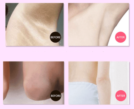Secret Underarm Whitening Cream