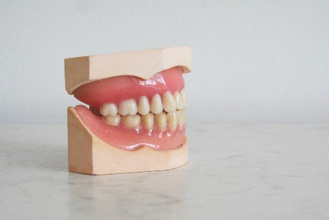 Molded model of teeth and gums