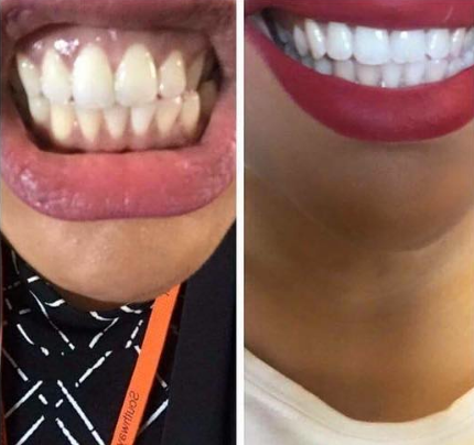 snow-teeth-whitening-reviews