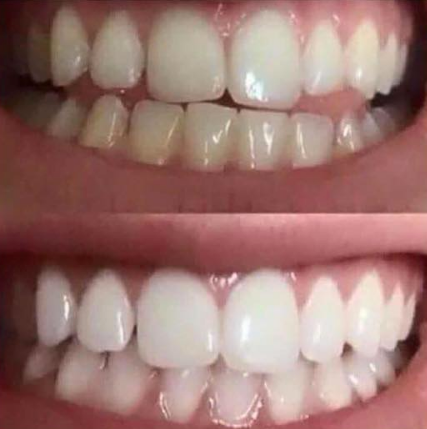 snow-teeth-whitening-kit-reviews