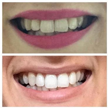 teeth before and after red right therapy