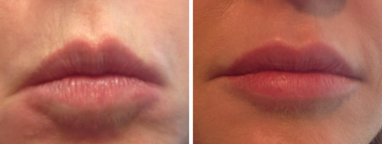 anti-aging-lip-balm-juvederm-filler-alternative
