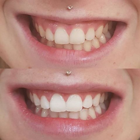 Snow Teeth Whitening Reviews Before After Photos