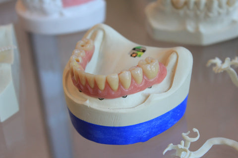 Model of teeth and gums with yellow teeth