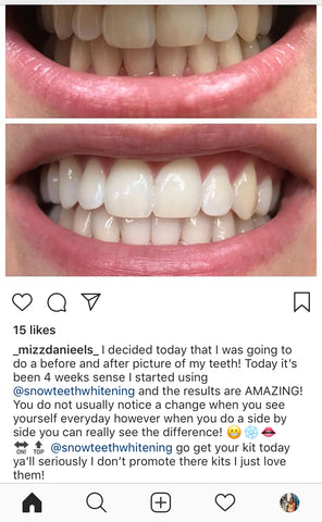 Measurements Of  Snow Teeth Whitening