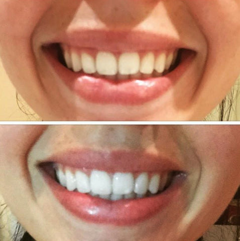 Fake And Real  Snow Teeth Whitening Kit