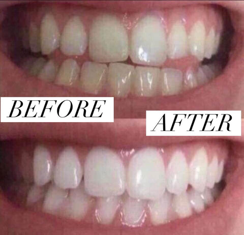 Homemade Instant Teeth Whitener