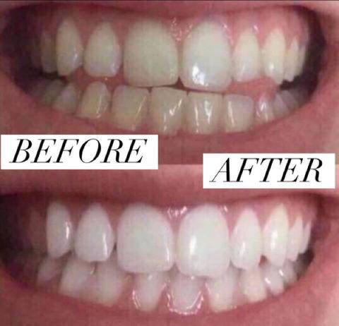 best teeth whitening kit