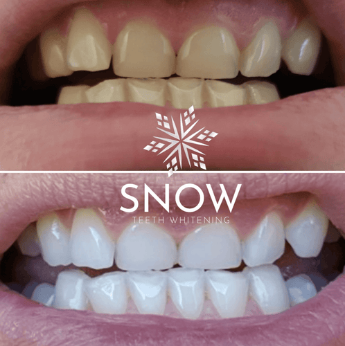 Insider Smiles x SNOW®️ SENSITIVE TEETH WHITENING AT-HOME SYSTEM [ALL-IN-ONE KIT] SPECIAL OFFER