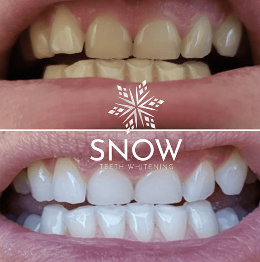 SNOW® SMILE FOR LIFE CLUB | Includes: Snow At-Home Teeth Whitening (ALL-IN-ONE KIT) - [Subscription Plan: 1 x Extra Strength & 1 x FREE Floss]