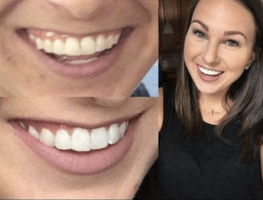 Turn Yellow Teeth White With The Best Teeth Whitening System