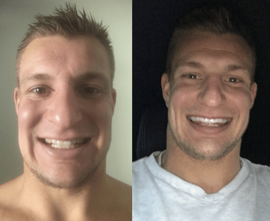 GRONK's Snow Teeth Whitening™ At-Home System [All-in-One Kit]