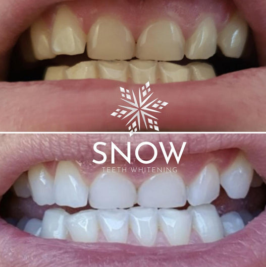 New Patented, Dual-light, WIRELESS, Self-Sanitizing Snow Teeth Whitening System