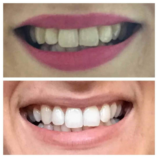 Snow® Teeth Whitening At-Home System [All-in-One Kit] - $99