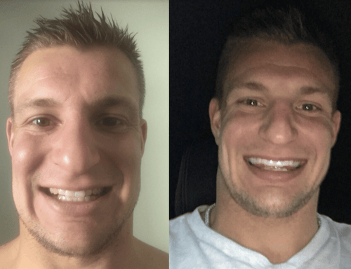 GRONK's Snow® Teeth Whitening At-Home System [All-in-One Kit]