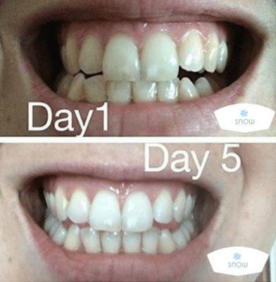 Special Offer - SNOW Teeth Whitening™ System
