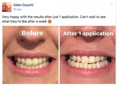 Immediate Teeth Whitening