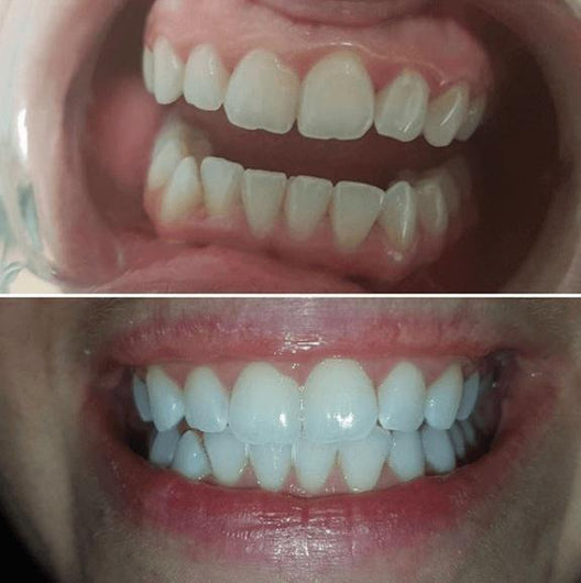 Special Offer Snow Teeth Whitening System