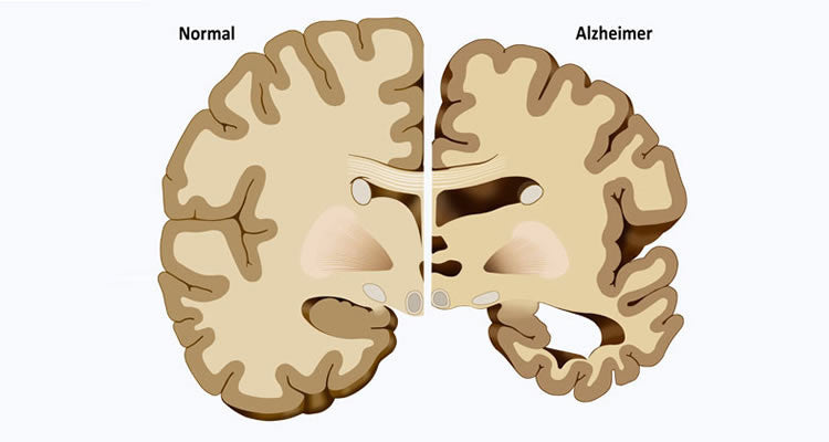 Is It Possible to Reverse or Prevent Alzheimer's?