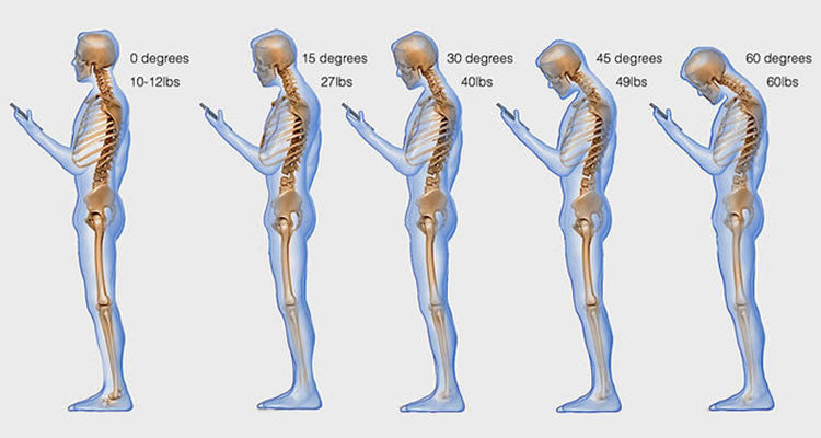 Are You Guilty of Text Neck?