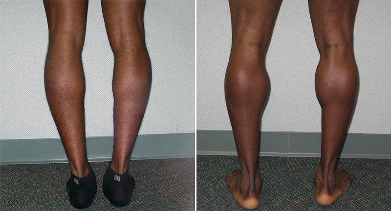 calf-implants