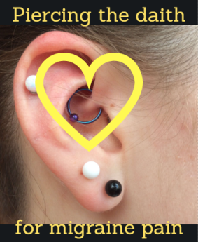 """On Pins and Needles"" - Acupuncture and the Daith Piercing for Migraine Pain (and more!)"