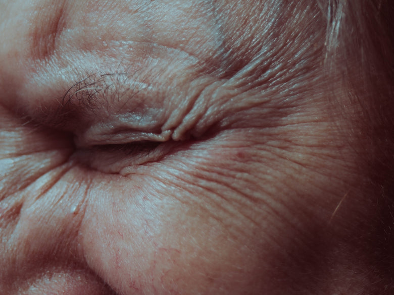 The different types of wrinkles - Health Blog - ebambu.ca